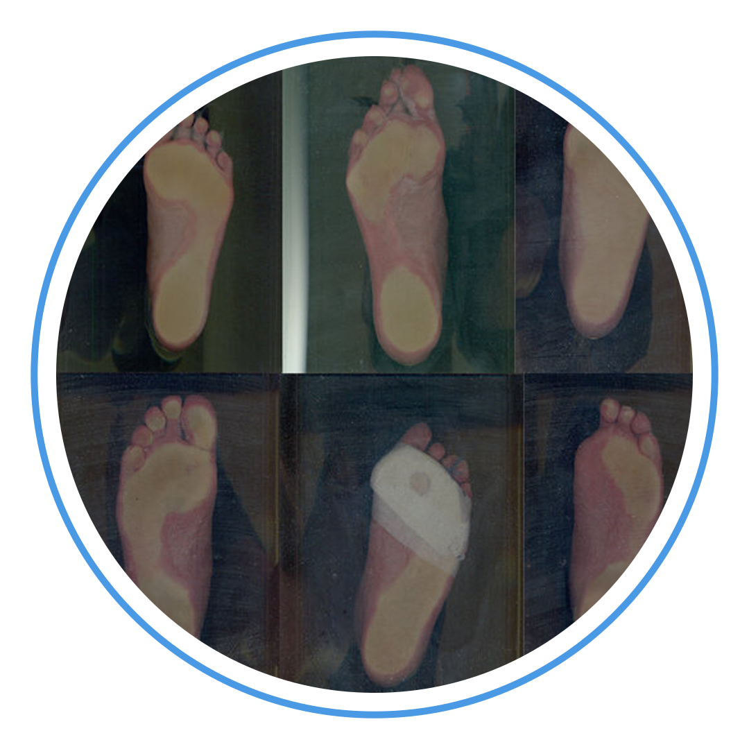 peslocus-physio-pysiotherapy-foot-deformities 8.png