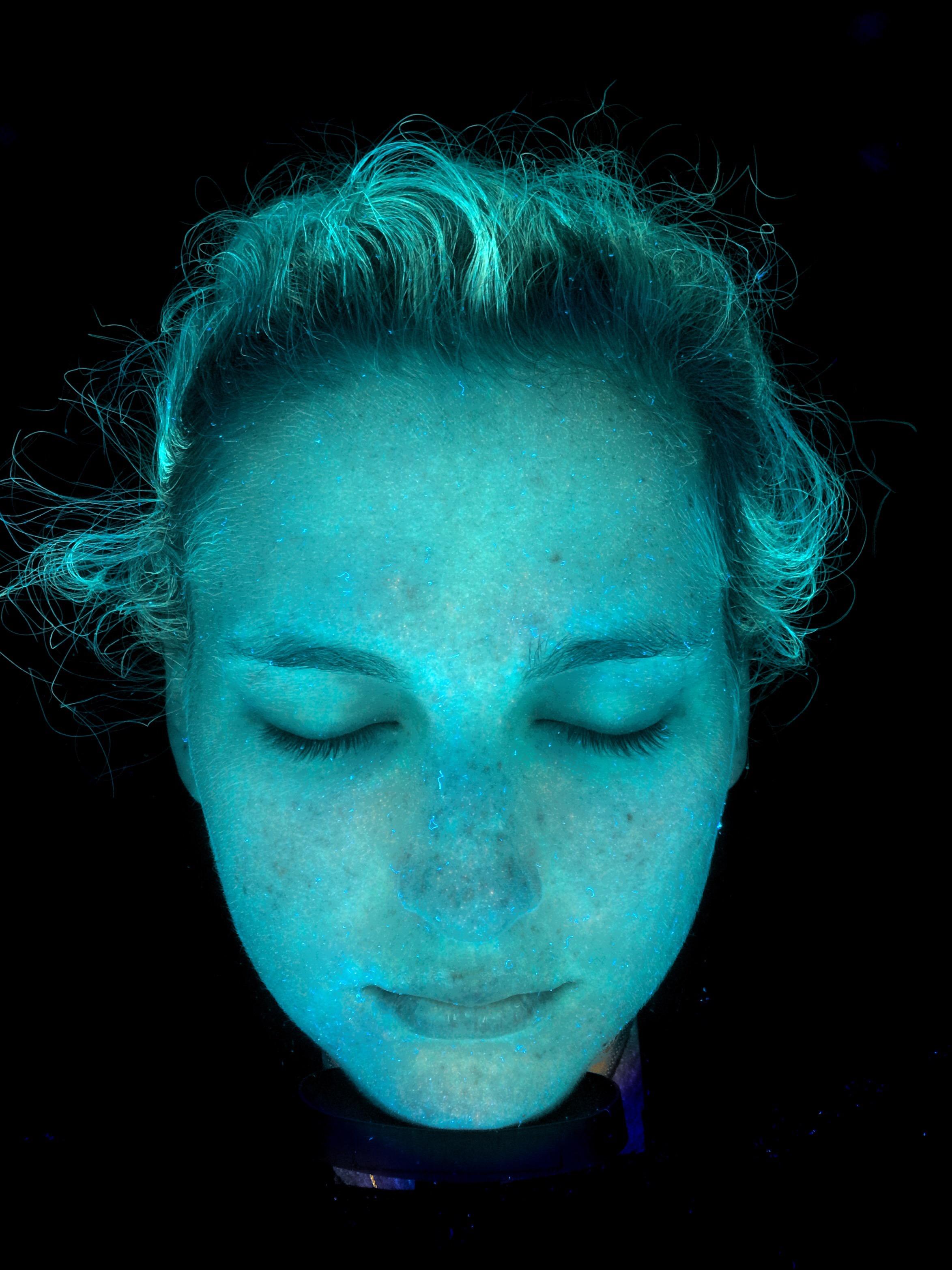 Dehydration/Lipid Dry Skin