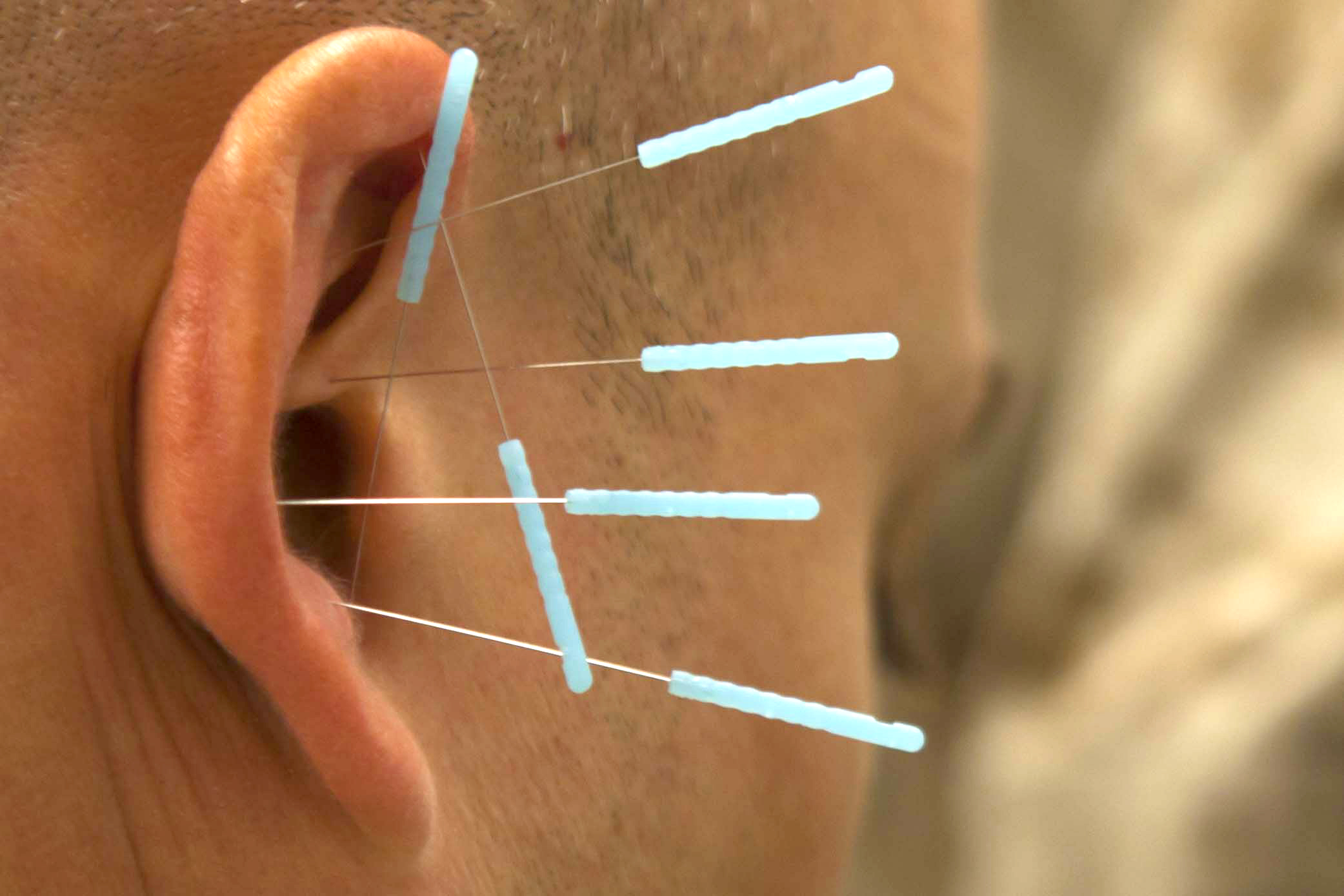 Jean-Michel Éte, Jeanmichelete, Traditional Chinese Medicine, Acupuncture, Osteopathy, Herbal Medicine, Cupping, Moxibustion, Gua Sha, Auriculotherapy, Tuina, Oriental Medicine, Holistic Therapy, Crania-Facial Therapy, Somato Emotional Release, NYC, Biological Decoding