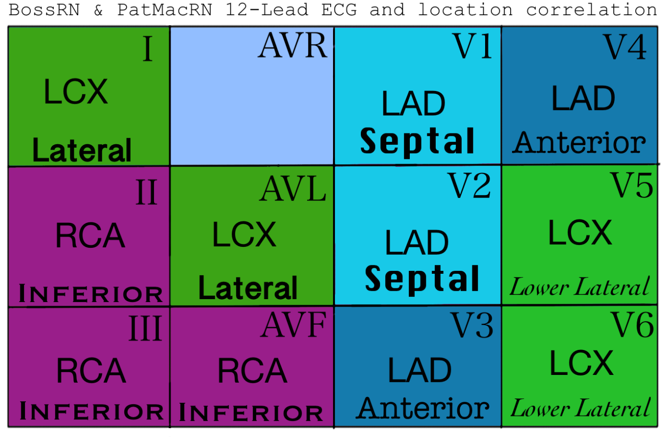 Updated STEMI chart.png