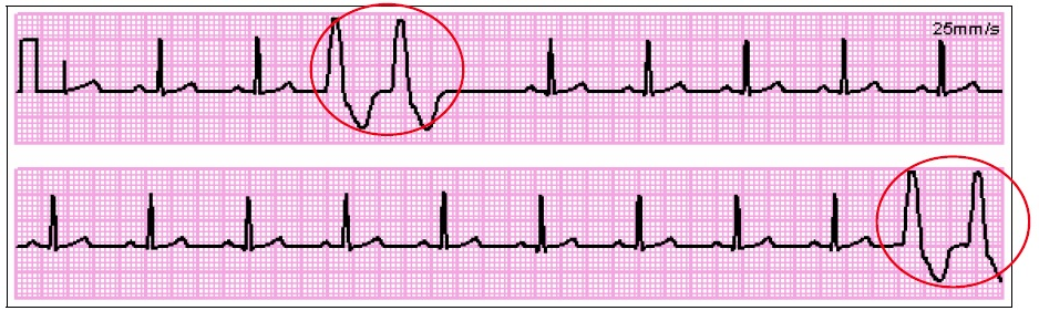 ( Source )   Note : Couplets may indicate increasing irritability of the cardiac tissue and that other problems may being coming in the future.