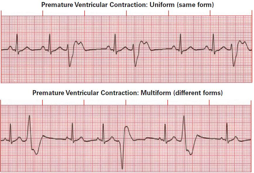( Source )   Note : View how the 2nd and 4th QRS complexes are both wide and misshapen, yet they are completely different in appearance.