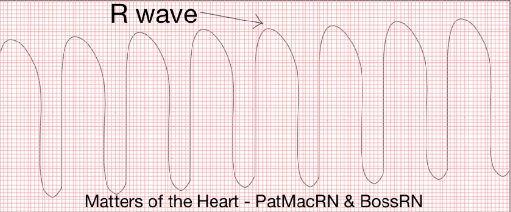 Note: This picture above is NOT to scale and is NOT a real EKG. It was a drawing I made to replicate monomorphic V-Tach. I am aware of how amazing it looks and no I am not currently able to be commissioned for my mad drawing skills, but thank you for the compliment!