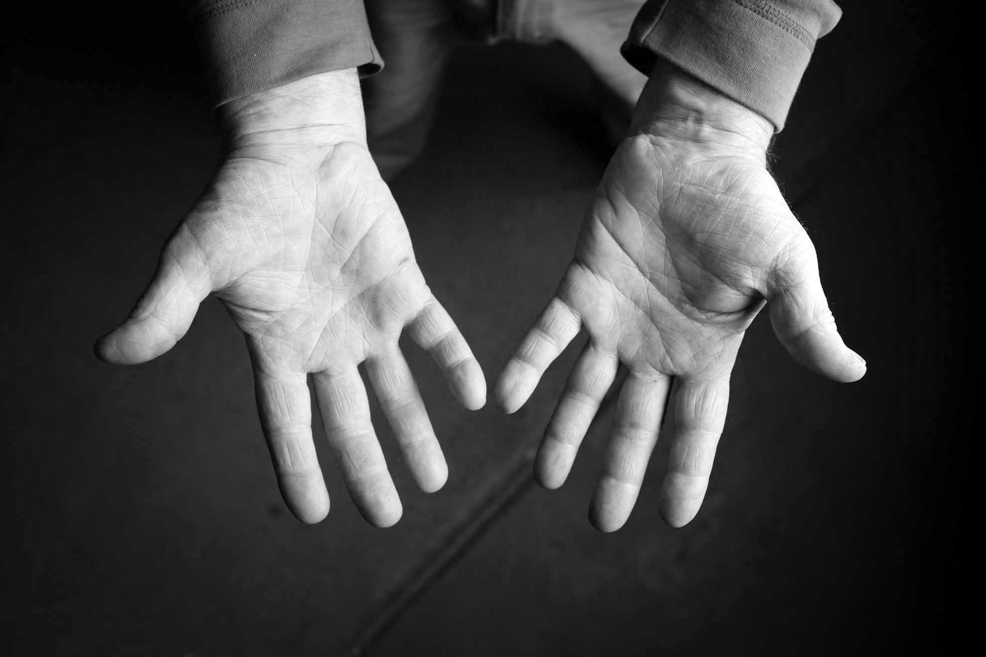 Brant Kingman- hands