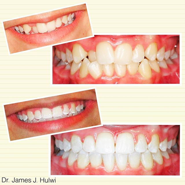 Back to School Smiles in full effect🙌 . . . . #mankato #orthodontist #bracesoff #orthodontics #perfectsmile #crowding #straightteeth #braces #invisalign #minnesota #teeth #overbite #dentist #mankatobraces #transformation #beforeandafter