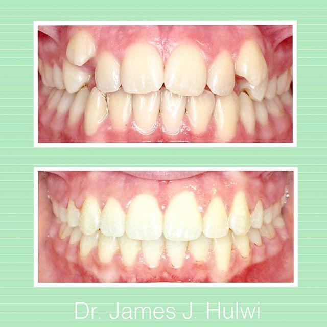 It's Tuesday! Nice transformation Sophia!👊👌 . . . . #mankato #orthodontist #orthodontics #perfectsmile #crowding #straightteeth #braces #invisalign #minnesota #teeth #overbite #dentist #mankatobraces #transformation #beforeandafter #smile #ortho #kato #nonextraction