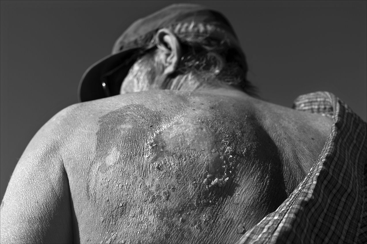 November 2017:  After the annual free Thanksgiving meal at the Kroc Center, Dennis shows the burns on his back from radiation therapy. With nobody to take care of him at home, he does his best to keep the burn areas from getting infected. And he is coughing up blood again. Dennis says he's grateful Blessing Hospital paid the $189 for medicated ointment he needs to heal the wound.