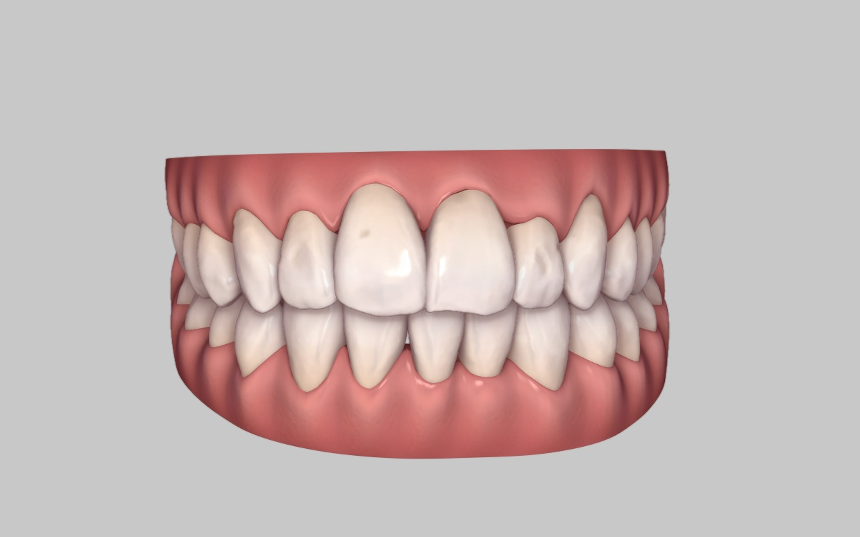 Invisalign With A Dental Extraction Dental Smiles Takeley