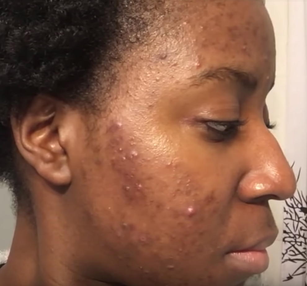 may acne breakout 2018