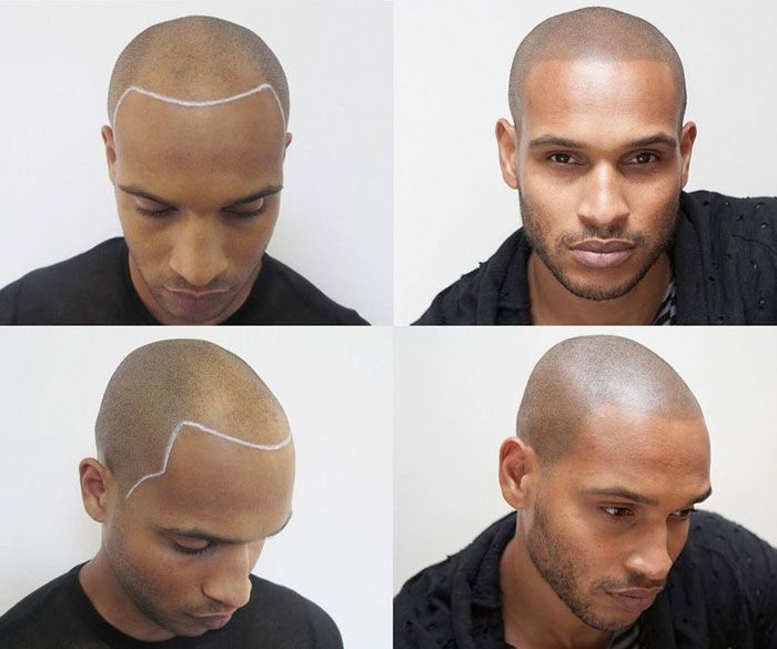 SCALP MICRO PIGMENTATION - $2000 - $4000   Scalp Micropigmentation is an effective treatment for Men and Women with hair loss or thinning hair. This non-invasive technique replicates the look of natural hair follicles and provides the appearance of thickness amongst existing hair or can create a closely-shaven scalp. SMP can restore receded hairlines, provide density to remaining hair and cover scars.  Cost varies depending on how much the client is wanting covered. This process is usually taken place over 2 days. Our price also includes your top up 2-3 weeks later. no hidden fees!