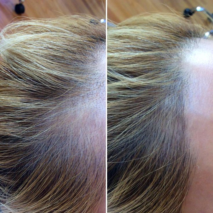 SCALP DENSITY TREATMENT - $800 - $1000   Density treatment is for men and women, this involves placing natural looking hair strokes back into the scalp to make the hairline appear fuller.
