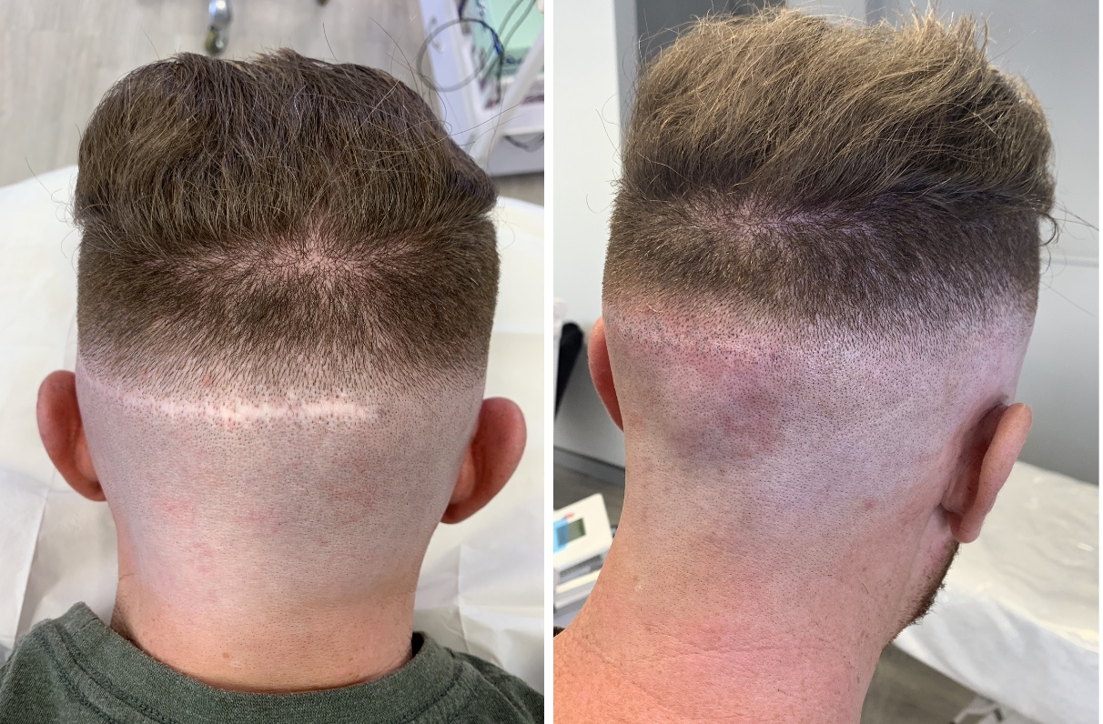 SCAR COVER UP - $600 - $1000   Scalp Micropigmentation is used to inject small amounts of pigment underneath the scalp in a vast series of dots, similar to getting a tattoo. This can be used to cover up any scars that may be visible on the scalp.  Cost varies depending on size that is needed to be covered.