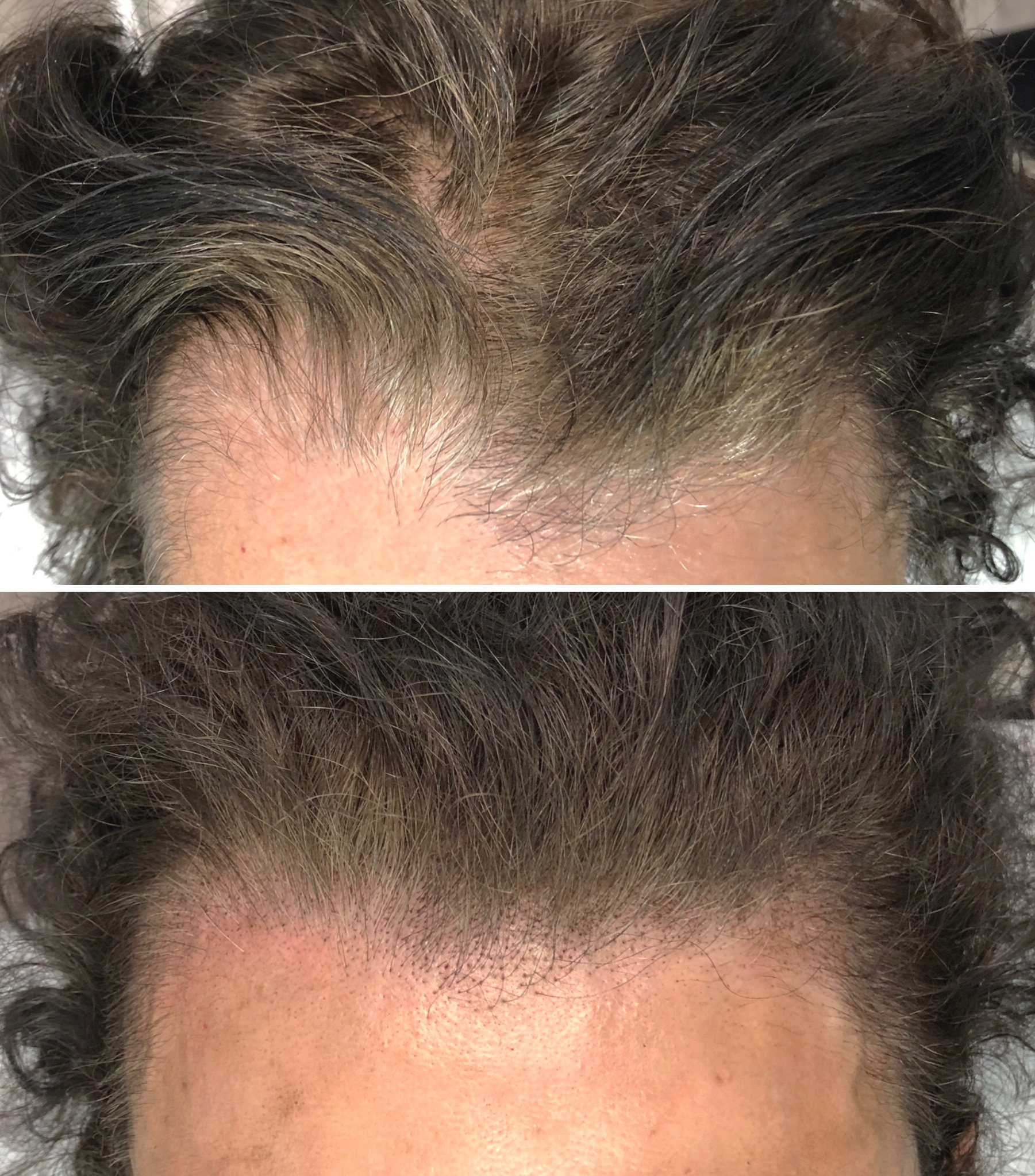 Who is a candidate for SMP? - Men and women wanting the appearance of added hair densityPeople with shaved heads that desire hairline definition & added densityAlopecia sufferersThose who want to camouflage burns, scars, or birthmarksNon-candidates for hair transplantationThose with transplanted hair who want to enhance their existing restoration