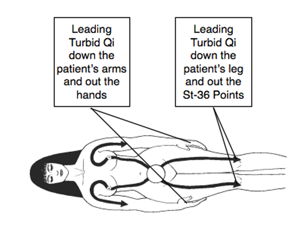 Figure 1.6. After purging the Toxic Qi from the patient's upper body, the Medical Qigong Doctor will continue to disperse the Toxic Qi from her lower abdomen, leading the Qi down the patient's leg and out her St-36 points.