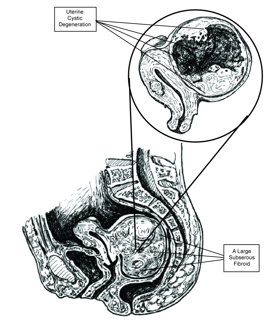 Figure 10. Stagnant Qi and Blood supply can sometimes result in a condition known as cystic degeneration (Inspired by the original artwork of Dr. Frank H. Netter).