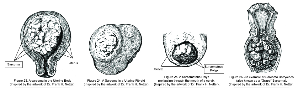 Figure-2327.jpg