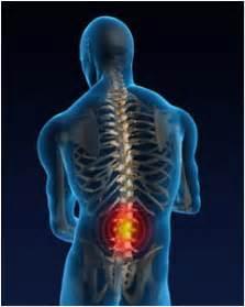 Low Back Pain.jpeg