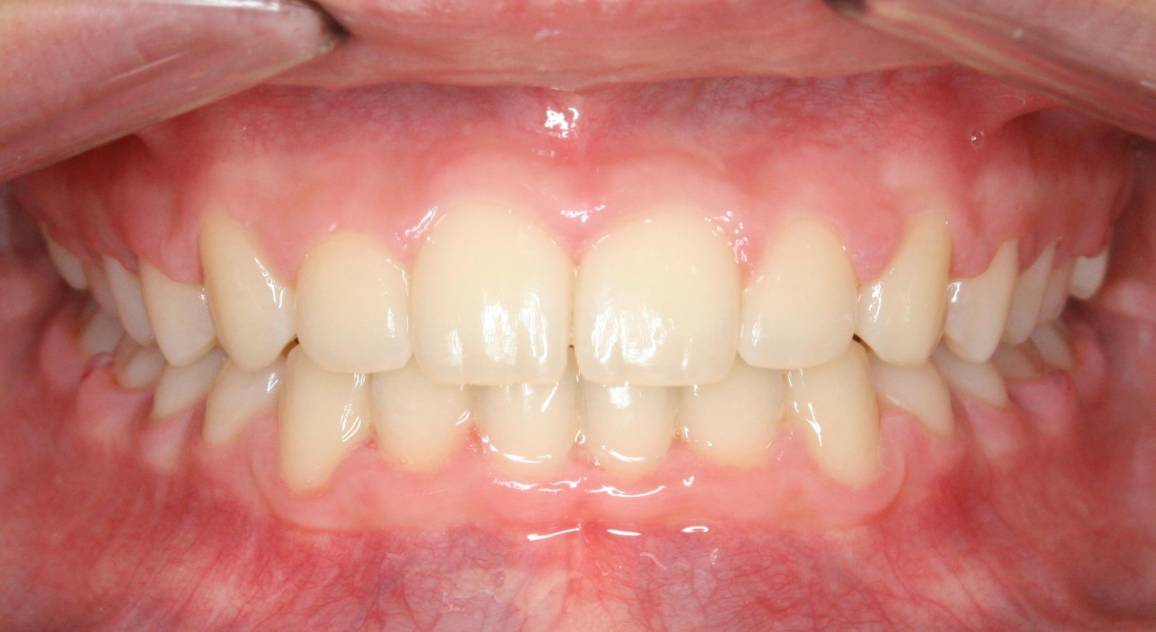 Case 3 Post - 1636762 - Madelyn Roberson - final - Intraoral Center.jpg