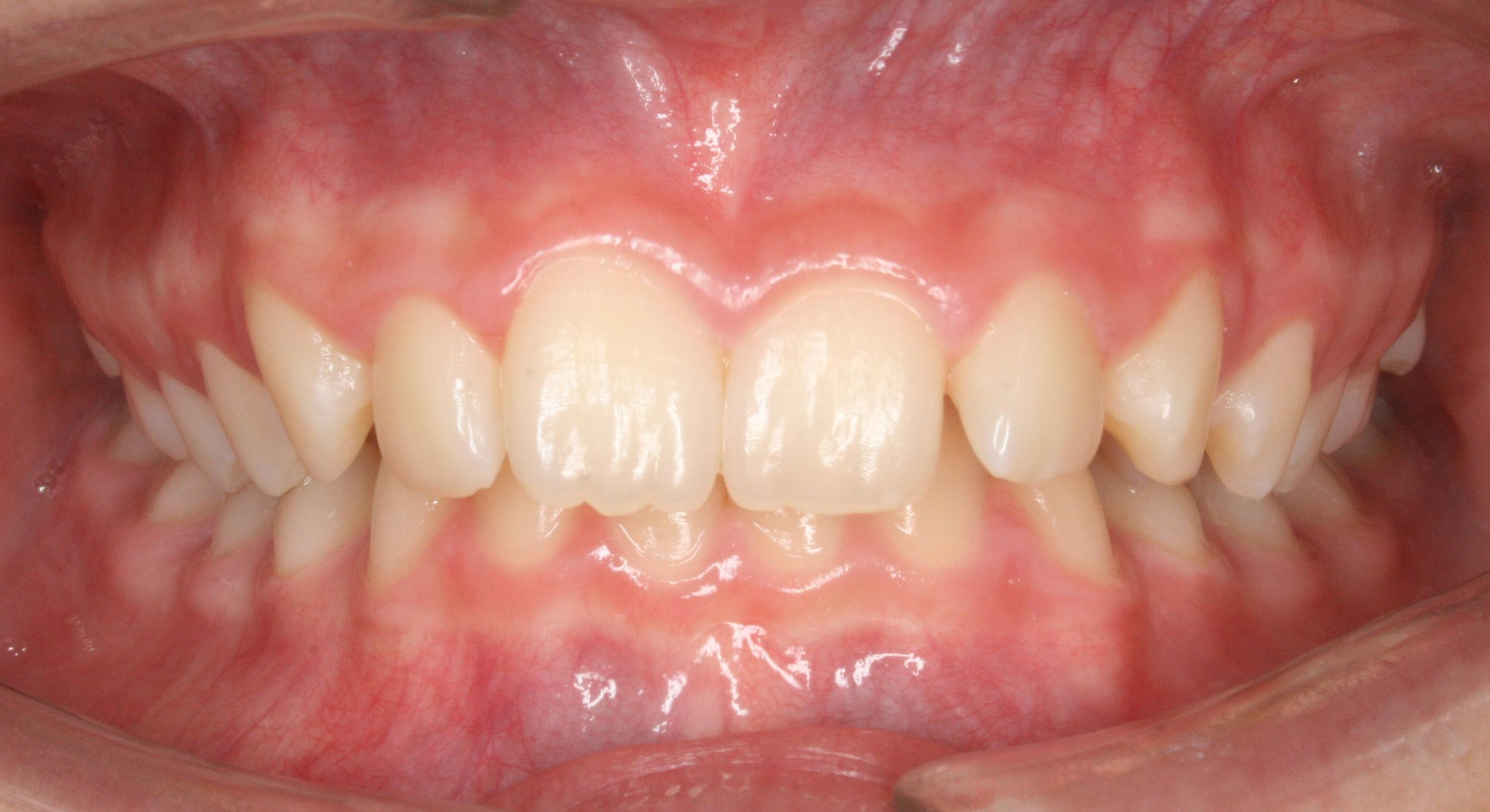 Case 3 Pre - 1636762 - Madelyn Roberson - initial - Intraoral Center.jpg