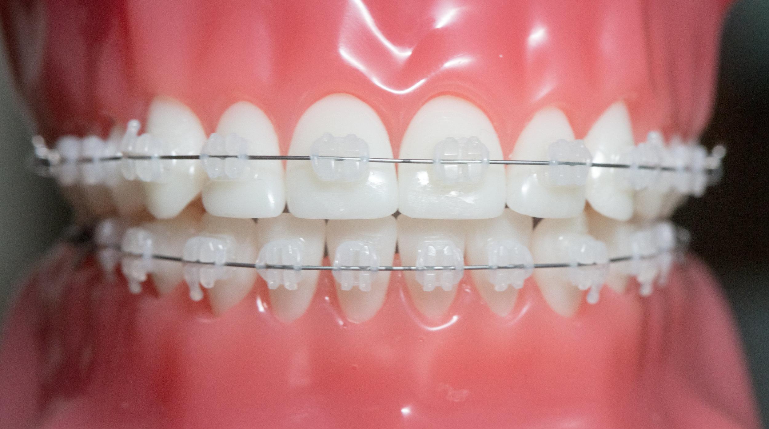 Samuelson Orthodontics - larity™ ADVANCED Ceramic Brackets