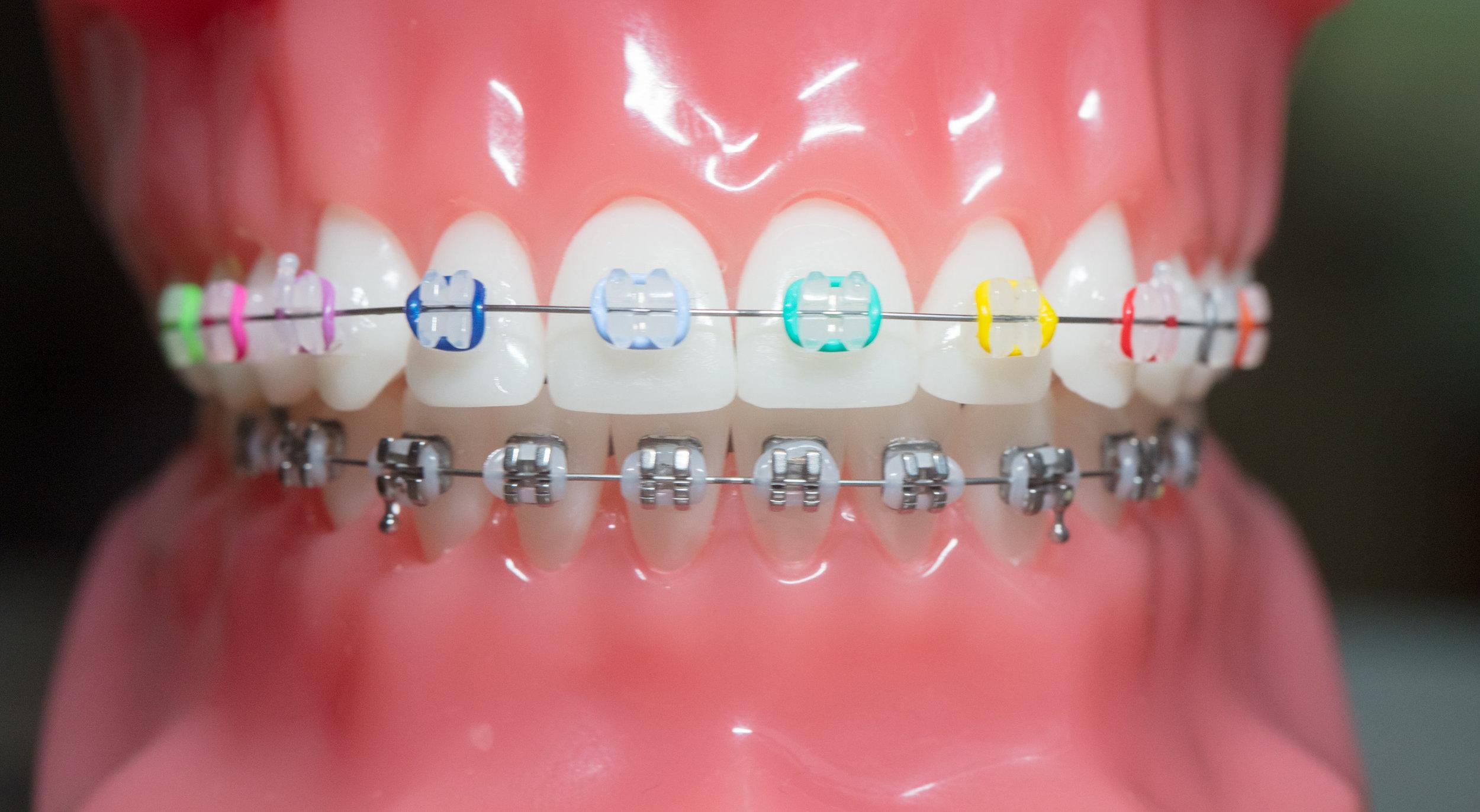 Samuelson Orthodontics - larity™ ADVANCED Ceramic Brackets with Color
