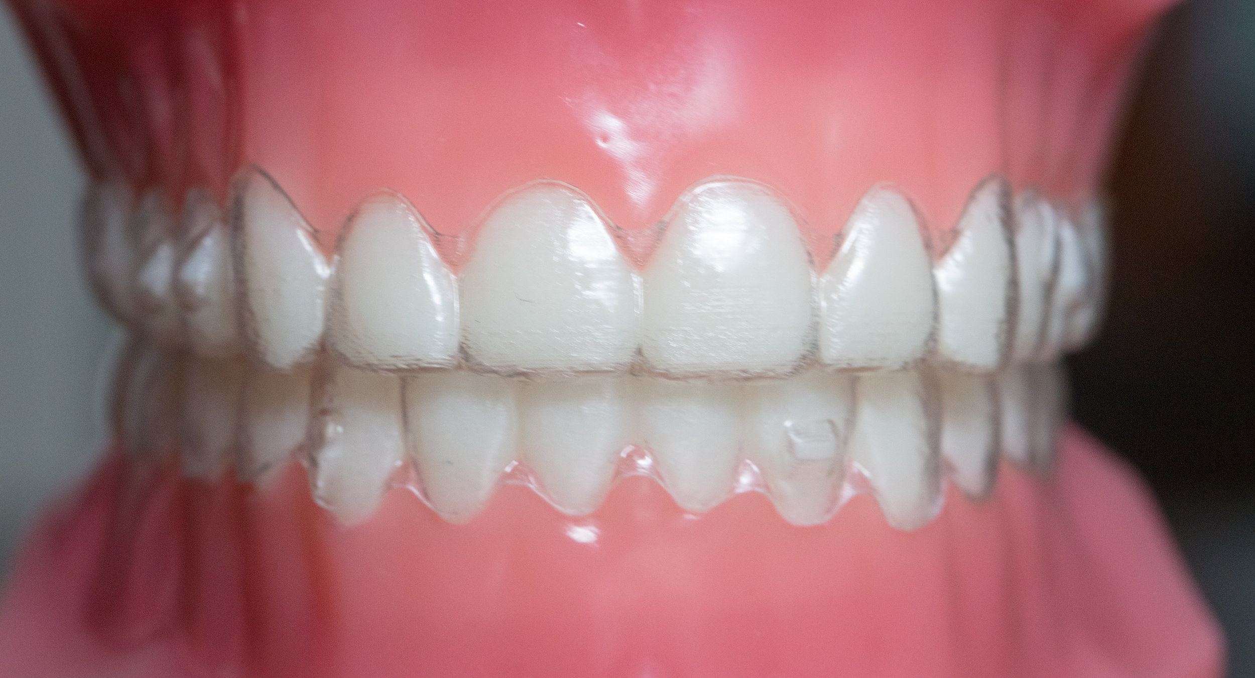 Invisalign®   Samuelson Orthodontics