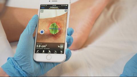 写真は、Business Wire ' Digital Wound Care Management Leader Swift Medical Raises $11.6 Million in Oversubscribed Series A ' より