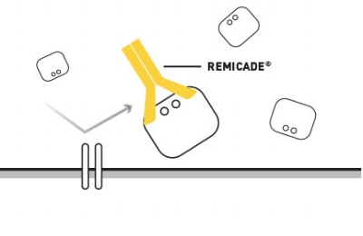 REMICADE®belongs to a class of biologic medications known as TNF-blockers. REMICADE®binds to TNF-alpha, blocking its action. ©Janssen Biotech, Inc. 2017.