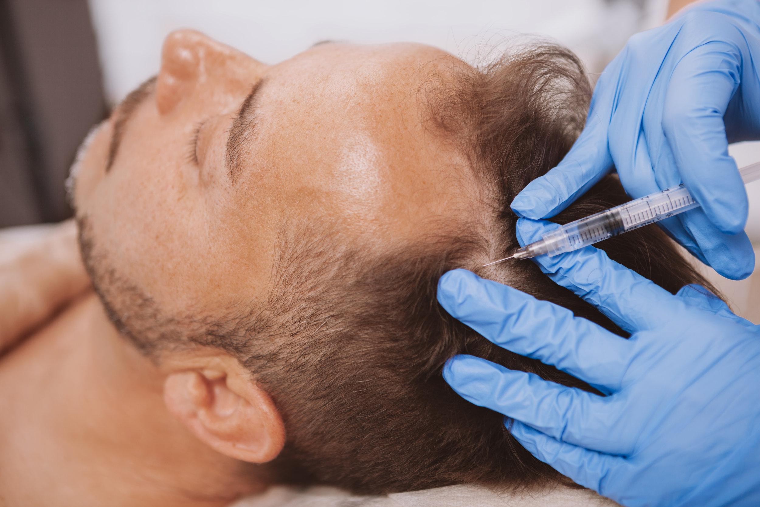 Hair Restoration Spokane.jpg