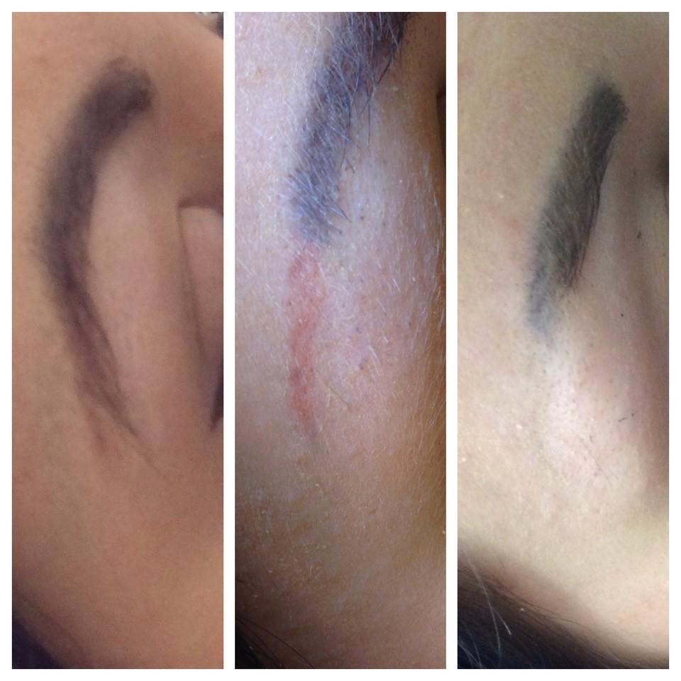 Vorher Nachher Permanent Makeup Entfernung Laserpraxis Erfurt 1.jpg