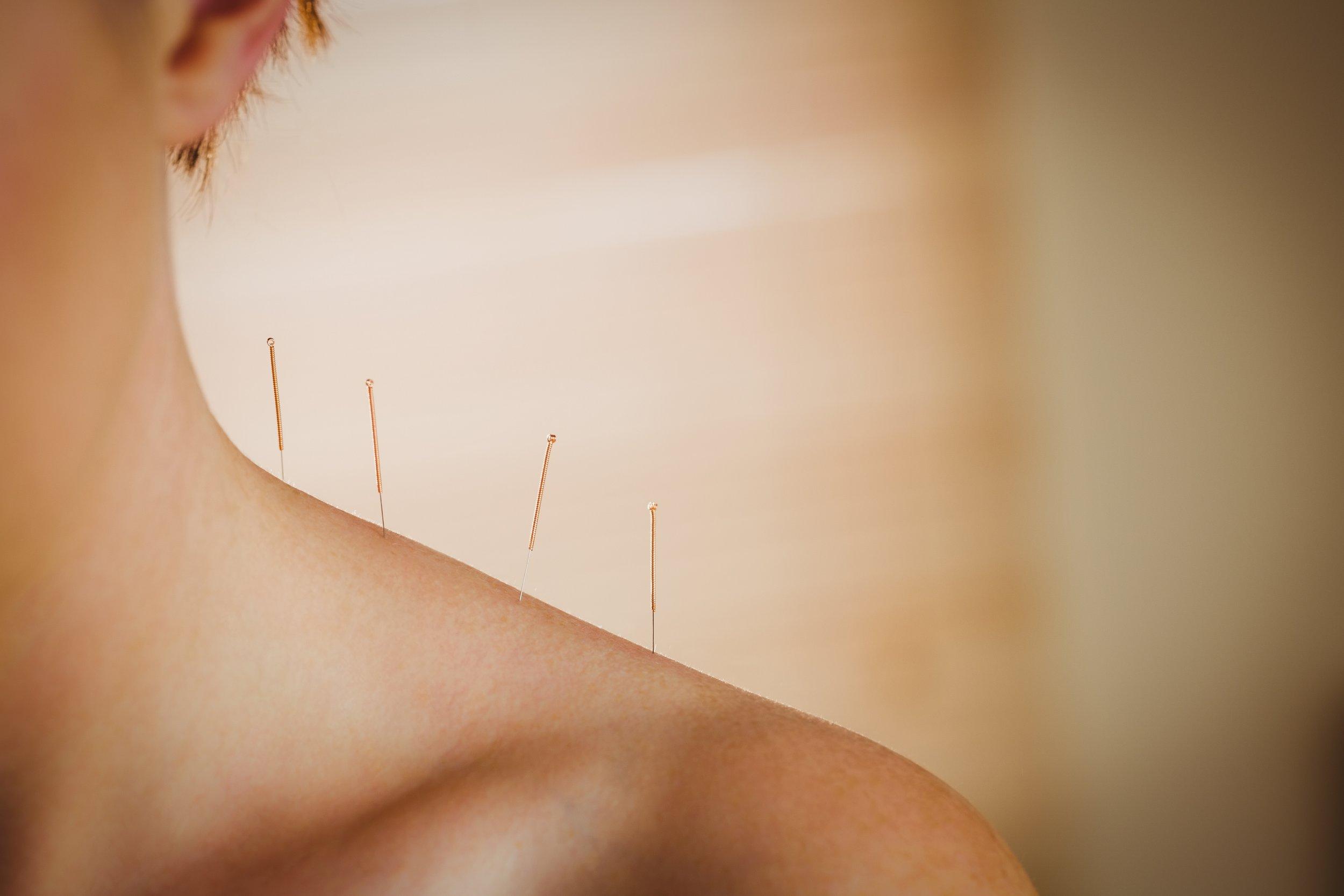 Acupuncture.jpeg