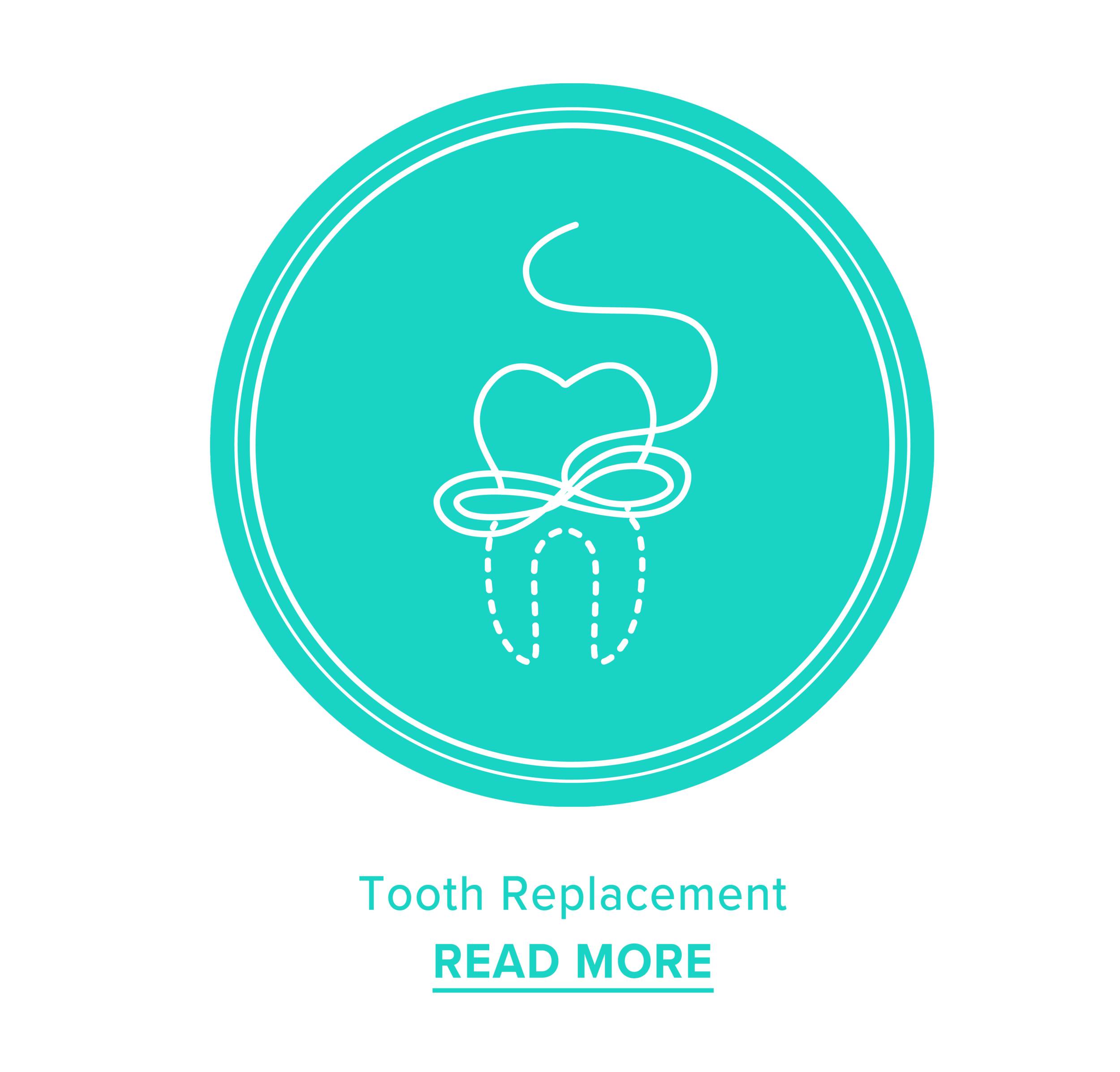 Tooth Replacement 2.20.38 pm.png