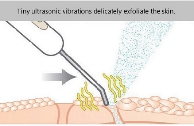 Ultrasonic Deep Cleansing utilises ultrasonic wave motion to remove aged surface skin cells, and surface impurities such as blackheads and whiteheads.