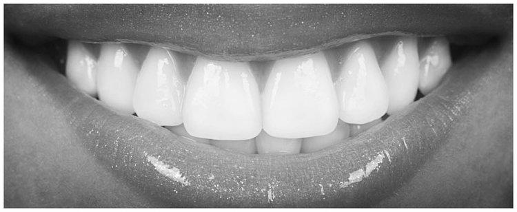teeth-whitening-narrow.jpg