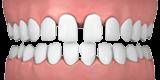 c06cf7d2-spaced-teeth1.png