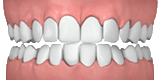 ff7d0291-overly-crowded-teeth1_002.png