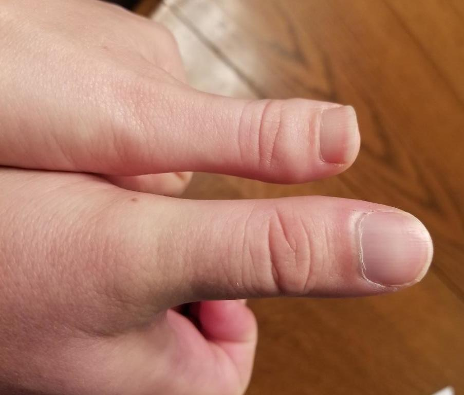 Author's short thumb is shown on the left, next to husband's normal-size thumb (right). Ovaries not pictured.