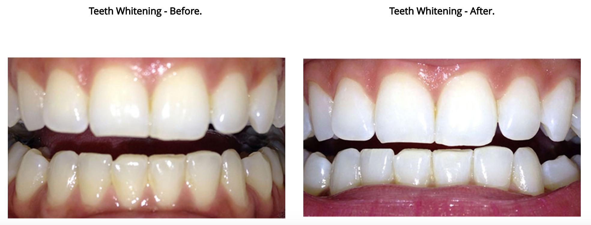 teeth white 2.png