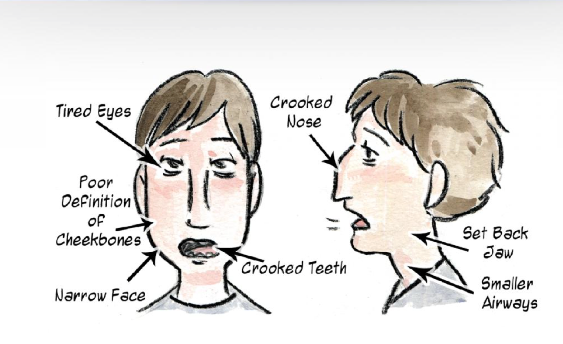 Facial Development of a Mouth Breather.png