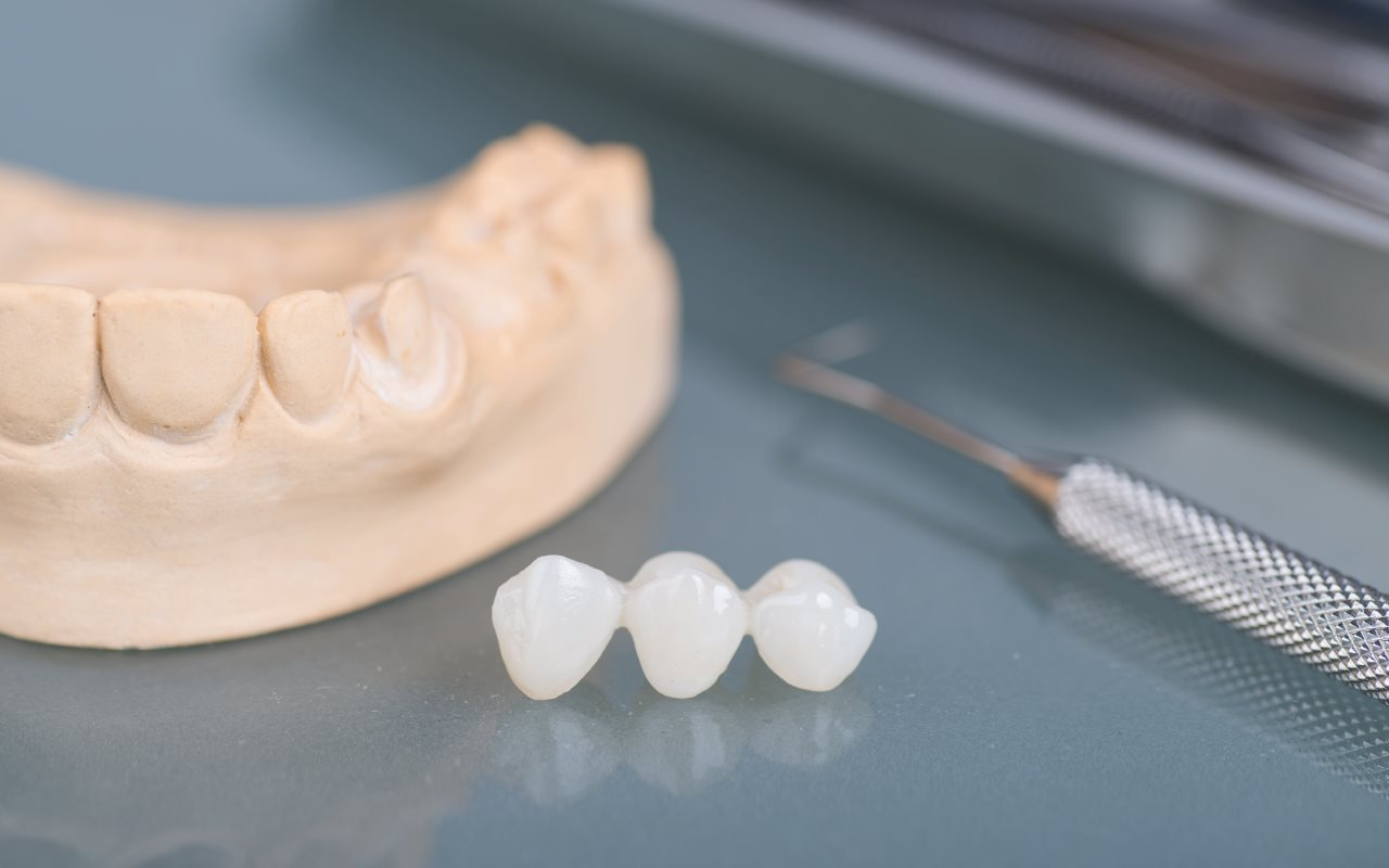 Crown - dental laboratory (The Local Dental Group and local denture clinic)