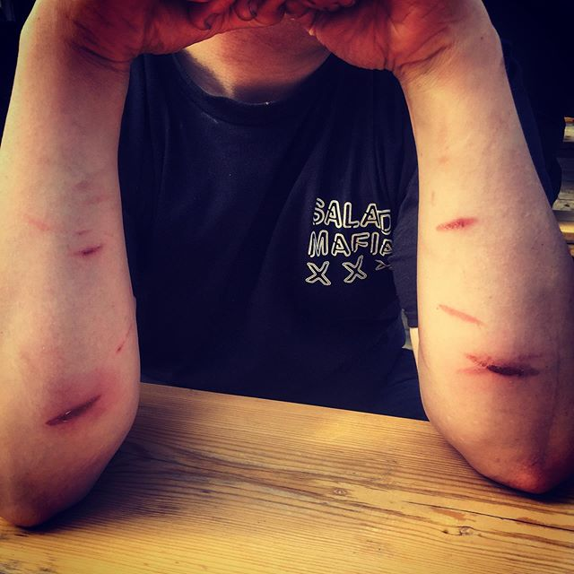 Battle scars! Are we cooking food or ourselves 😂 the tandoor haha #tandoor  #healthyeating #healthyfood #london