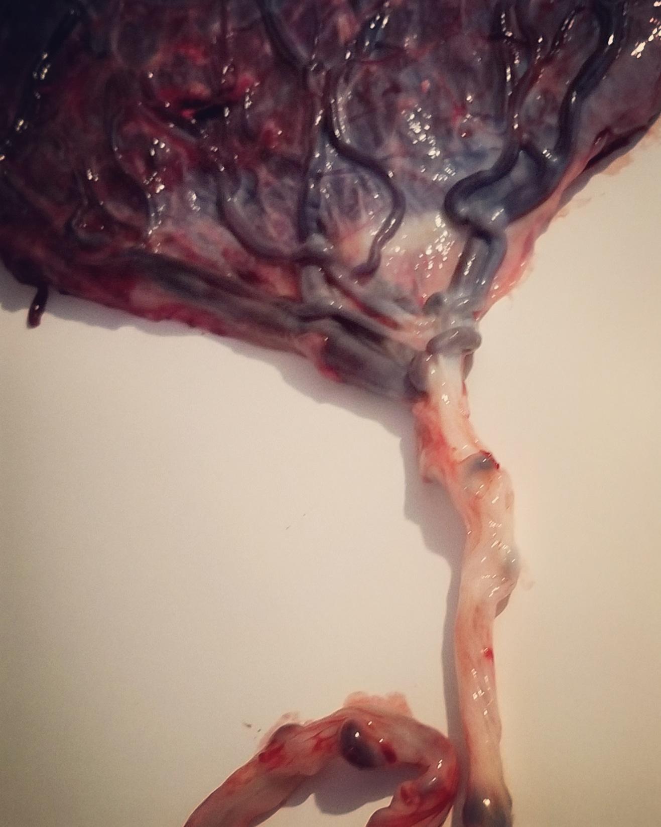 RVA Placenta.jpg