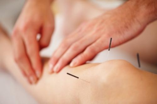 acupuncture in berkeley, ca