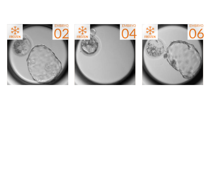 Embryo Image Four.jpg