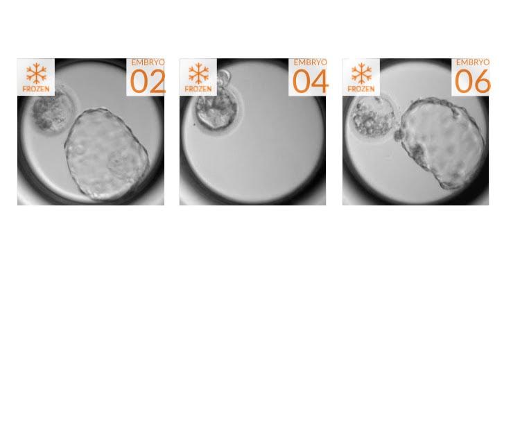 Embryos.PNG