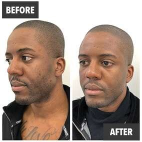 Prp Facial Treatment London See Before Afters The Prp Lab