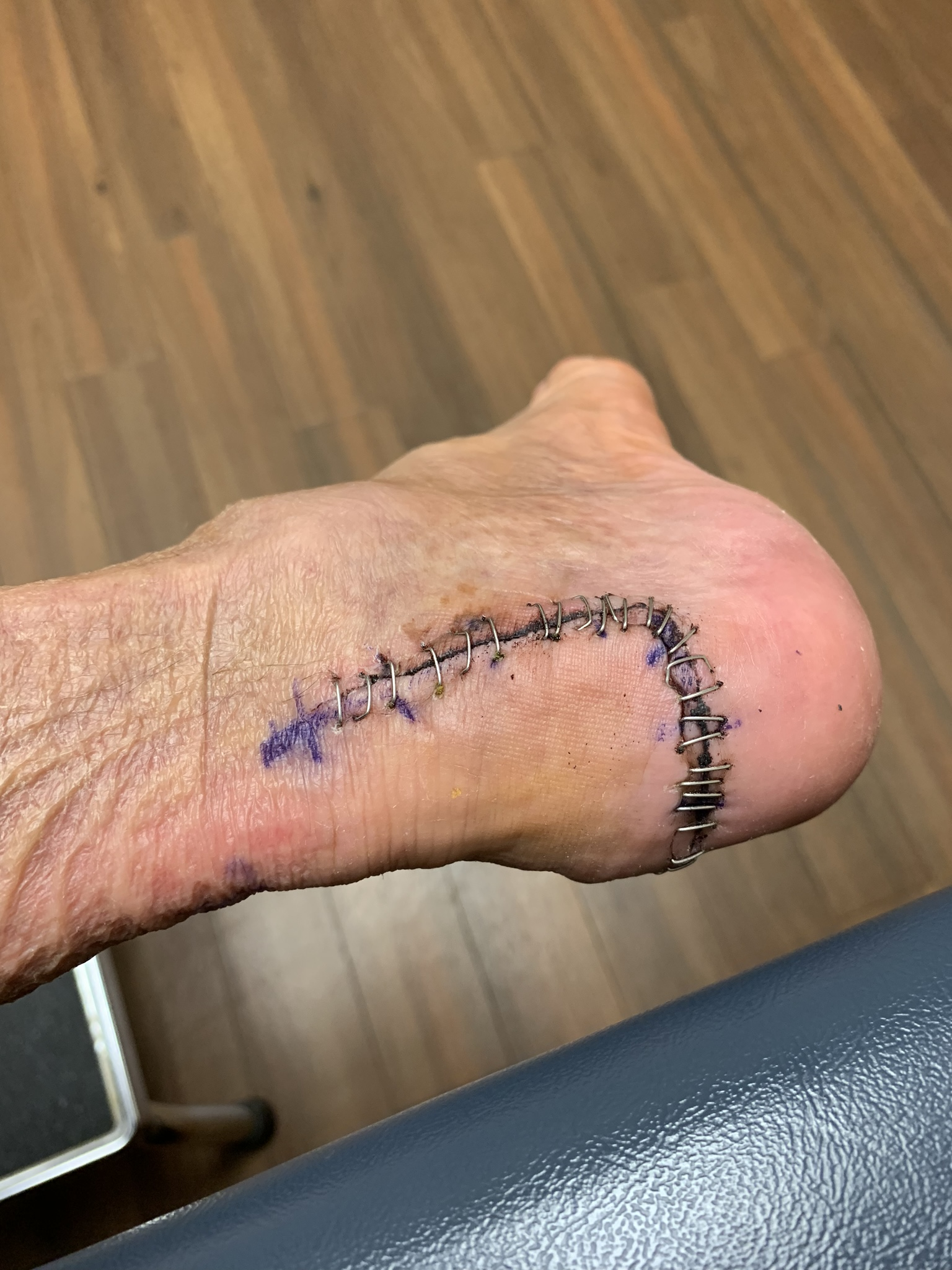 Back of foot before staples were removed