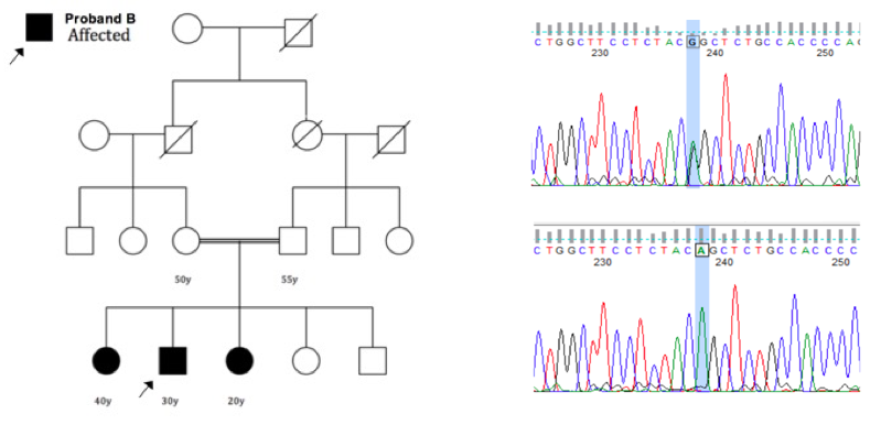 This is an example of a pedigree (a graphical representation of a family history), showing the members of the family that are affected by the disease (LEFT). The double lines linking two individuals reflects their shared ancestry (consanguineous). The image on the right shows a change in the DNA sequence that results in a faulty protein associated with the disease in this family.