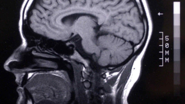envejecimiento-del-cerebro.jpg