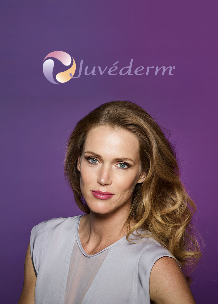 Juvéderm - The #1 selling collection of hyaluronic acid fillers in the U.S. Each product in the Juvéderm® collection of fillers adds volume to a different area of the face to lift the cheeks, smooth parentheses lines or plump the lips.